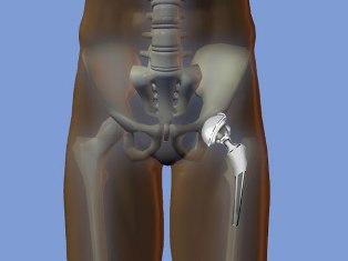 Время операции на тазобедренный сустав лошадиный гель-бальзам floresan для суставов в екатеринбурге